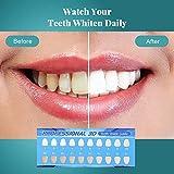 Zoom IMG-1 gel sbiancante denti orihea sbiancamento