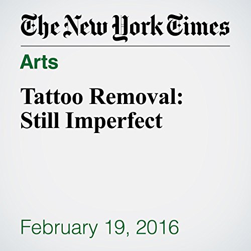 Tattoo Removal: Still Imperfect audiobook cover art