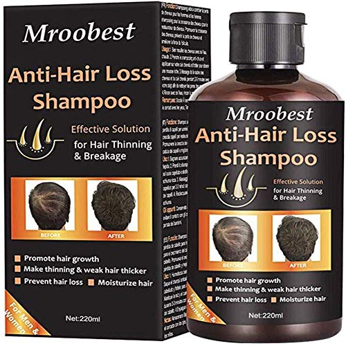 Anti-Hair Loss Shampoo, Hair Regrowth Shampoo, Natural Od Ginger Hair Care Shampoo Effective Solution for Hair Thinning & Breakage - Organic Hair Regrowth.Products for Men & Women
