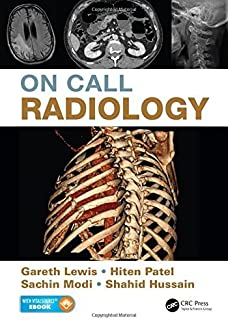On Call Radiology by Gareth Lewis Sachin Modi Hiten Patel Shahid Hussain(2015-06-19)