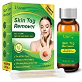 Ulensy Skin Tag Remover, All-Natural Formulation Skin Tag Removal, Fast-Acting, Easy to Remove All Size Skin Tags from the Root Up, Anti-Scarring Skin Tag Remover, Safe for the Whole-Body Use