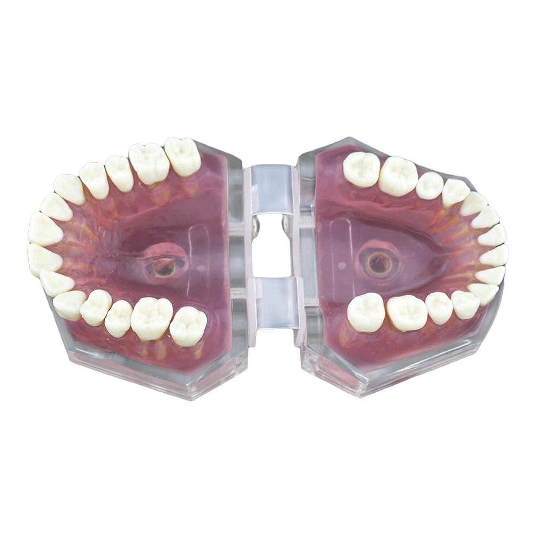 公式高度杖Healifty 28歯モデル教育歯歯モデル教育歯モデル子供の歯医者のための取り外し可能な歯モデル