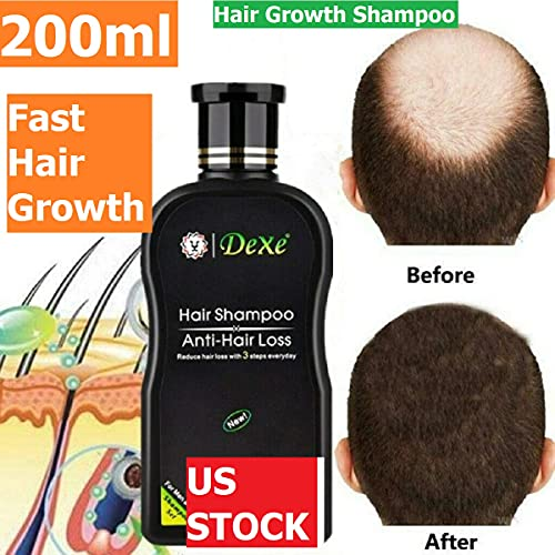 Chinese hair products _image0