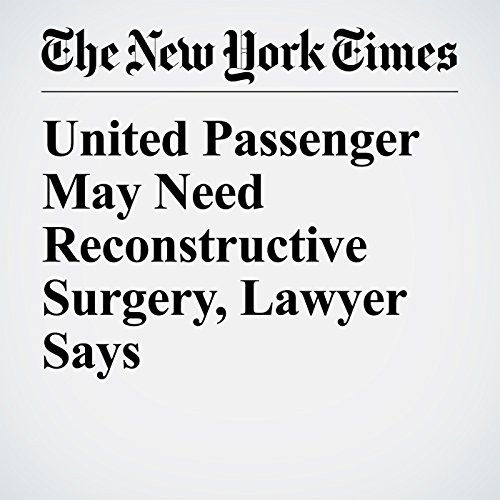 United Passenger May Need Reconstructive Surgery, Lawyer Says copertina