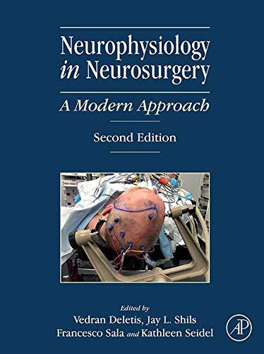 Neurophysiology in Neurosurgery: A Modern Approach (English Edition)