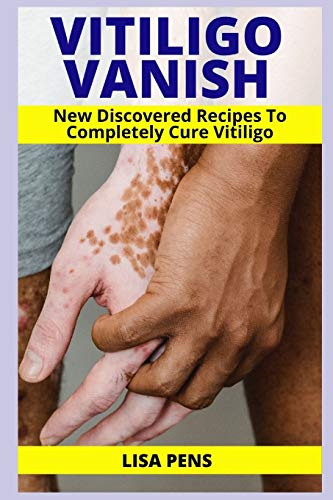 VITILIGO VANISH: Newly Discovered Secret Recipes To Completely Cure Vitiligo, Gain Your Self Esteem, Enjoy Your Clear Smooth Skin Again And Conquer Vitiligo Naturally