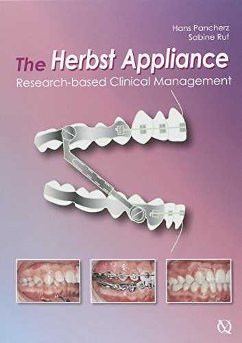 The Herbst Appliance: Research B...