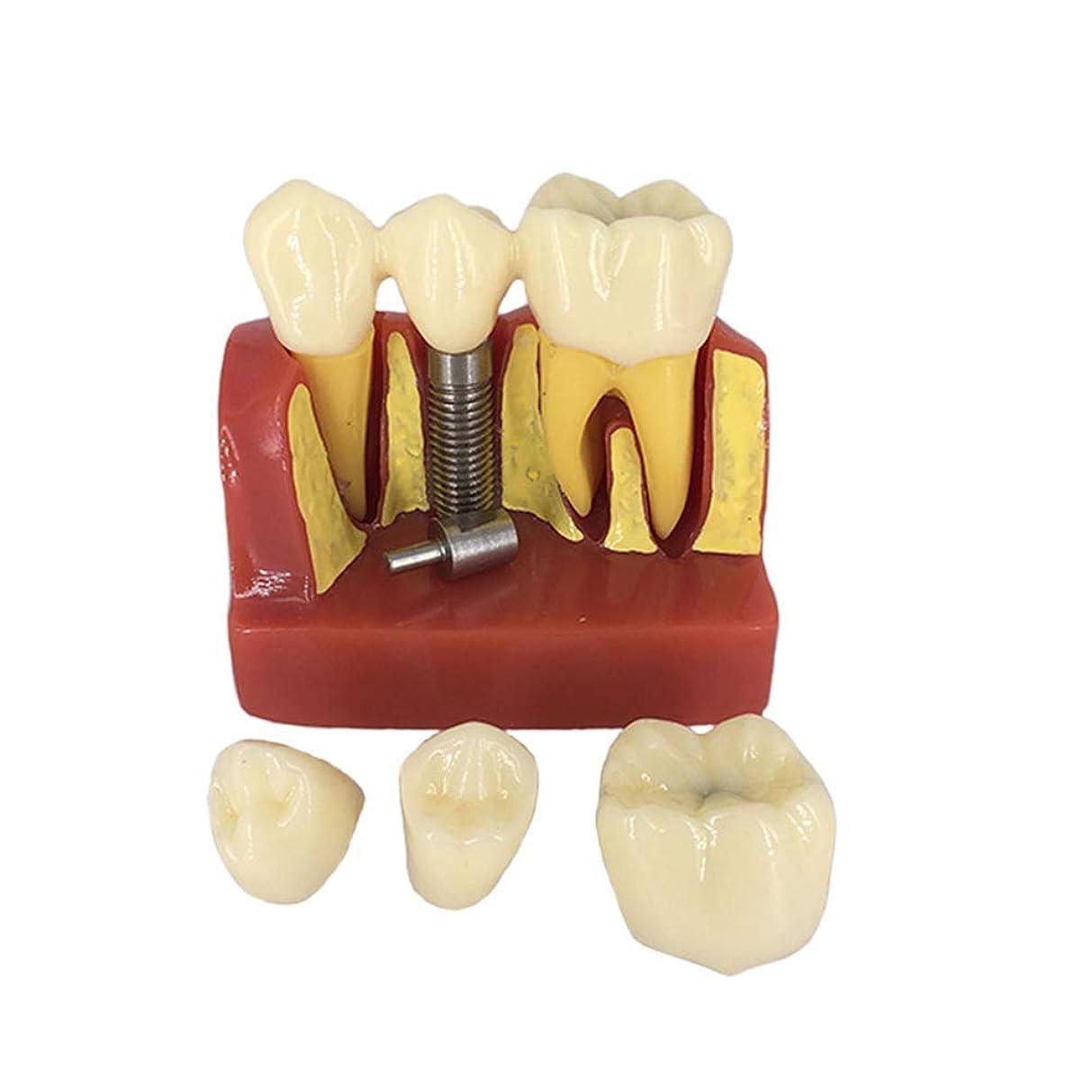 重くする調停する商業のHEALIFTY デンタルデモンストレーション歯モデルデンタルモードを教える標準的な研究