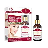 Ofanyia Scar Removal Facial Serum Moisturizing Nourishing Fading Scar Repairing Face Essence