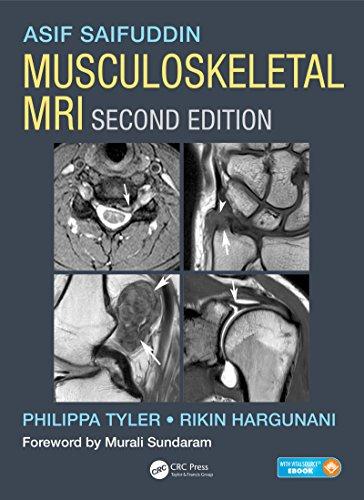 Musculoskeletal MRI (English Edition)