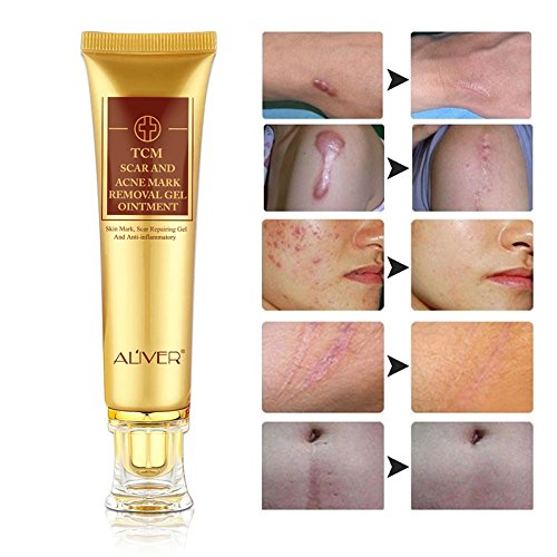 LanBeNa TCM Scar and Acne Marks Removal Cream Skin Repair Scars Burns Cuts Pregnancy Stretch Marks Acne Spots Skin Redness Treatment Cream Gel Ointment for Face and Body
