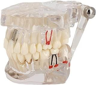 Best free teeth model Reviews