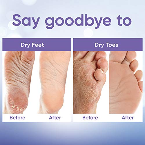 Foot Peel Mask (2 Pairs) - Foot Mask for Baby Feet and Remove Dead Skin - Baby Foot Peel Mask with Lavender and Aloe Vera Gel for Men and Women Feet Peeling Mask Exfoliating