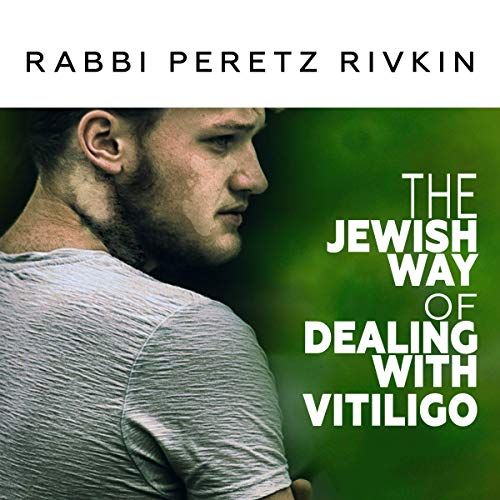 The Jewish Way of Dealing with Vitiligo audiobook cover art