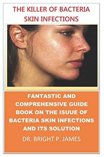 THE KILLER OF BACTERIA SKIN INFECTION.: A COMPREHENSIVE BOOK ON BACTERIA SKIN INFECTIONS AND THE SOLUTION TO IT.