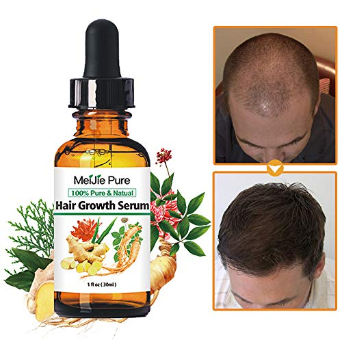 Hair Growth Serum,2020 Hair Growth Treatment,Hair Serum,Anti Hair Loss, Thinning, Balding, Repairs Hair Follicles, Promotes Thicker, Stronger Hair , And Promotes Hair Regrowth