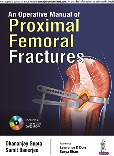 An Operative Manual Of Proximal Femoral Fractures With Dvd-Rom