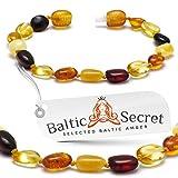 Bracelet ou bracelet de cheville en ambre de la Baltique - Véritable perles d'ambre de la Baltique - Soulagement de la douleur naturelle, 6.5 IN / 16.5 CM