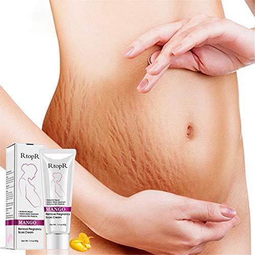 Envisioni RtopRMango Eliminar Crema para Cicatrices de Embarazo - Estrías y Crema para Cicatrices - Best Body Moisturizer-40g