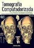 Tomografia Computadorizada: Para Técnicos e Tecnólogos em Radiologia (1)