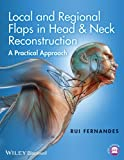 Local and Regional Flaps in Head and Neck Reconstruction: A Practical Approach - Rui Fernandes