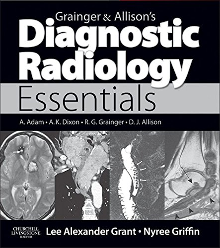 Grainger & Allison's Diagnostic Radiology Essentials E-Book: Expert Consult: Online and Print (English Edition)