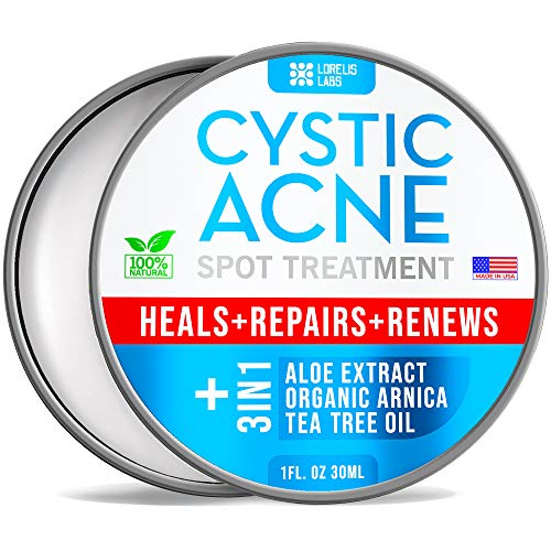 Cystic Acne Spot Treatment for Face & Body – Natural Acne Scar Remover – Fast Acting Acne Breakout Cleanser | All Skin Types – Acne Skincare Cream with Tea Tree Oil, Aloe Vera - Made in USA - 1 fl.oz