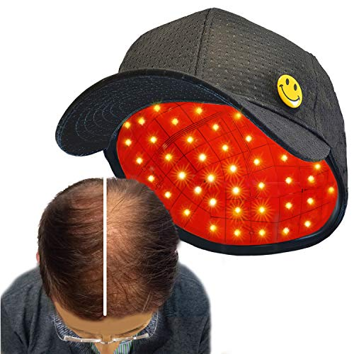 NEW NODEAHELMET Hair Growth System, FDA Cleared Hair Regrowth Cap for Men and Women, Therapy Device, 81 Premium Red Lights