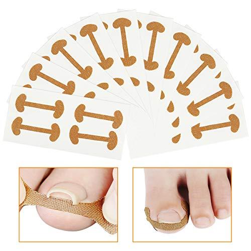Zehennägel Korrektur Patch 40 Stücke Eingewachsene Zehennägel Aufkleber,Pediküre Aufkleber Zehennagel Elastische Patch