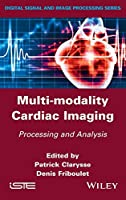Multi-modality Cardiac Imaging: Processing and Analysis (Digital Signal and Image Processing)