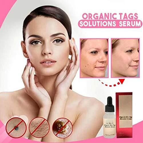 Organic Tags Solutions Serum, Mole & Skin Tag Repair Solution Painless Mole Skin Dark Spot Repair Face Wart Tag Freckle Repair Cream Oil (20ml)