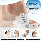 Aokey 2PCS/pair Bunions Pain Relief Cushion Corrector Splint Treatment...