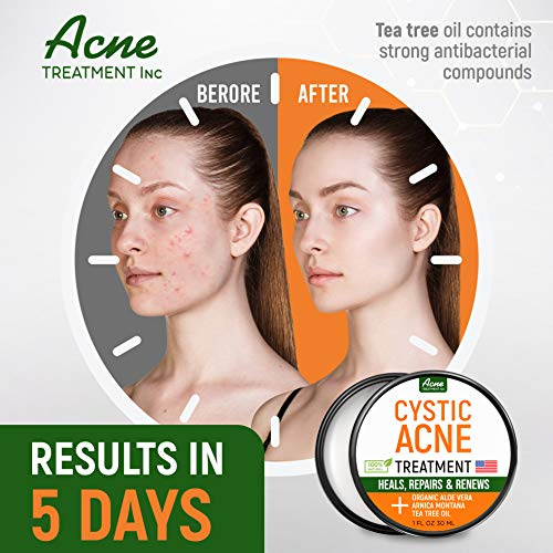 Cystic Acne Treatment and Acne Scar Remover - Made in USA - Effective Face  New Hampshire