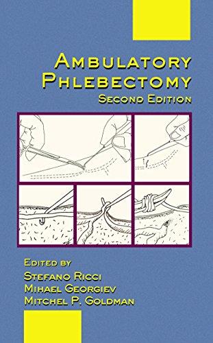 Ambulatory Phlebectomy (Basic and Clinical Dermatology Book 31) (English Edition)