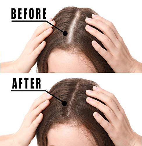 Hair Growth Serum, Votala Hair Growth Treatment, Hair Serum, Anti Hair Loss, Thinning, Balding, Repairs Hair Follicles, Promotes Thicker, Stronger Hair, And Promotes Hair Regrowth