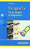 SCHMIDT:Ecograf'a: De la imagen al diagnóstico