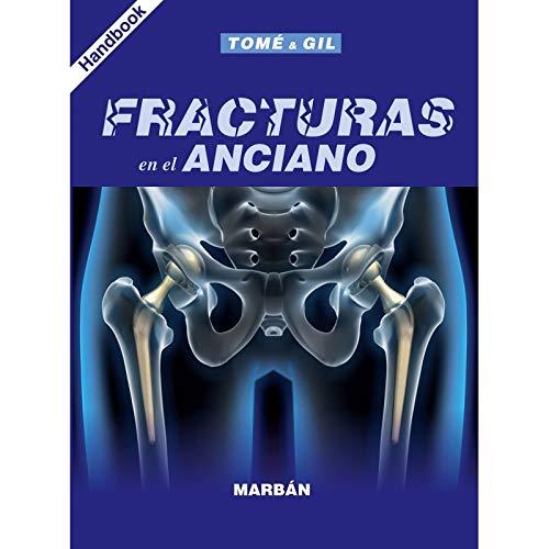 FRACTURAS EN EL ANCIANO HANDBOOK