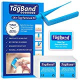 Original TagBand Micro Skin Tag Remover Device for Small Skin Tags (includes 10x Removal Bands & Cleansing Wipes)