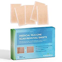 powerful Puriderma Medical Silicone Scar Removal Sheet [Set of 5] – Keloids, surgery, … fast and effective