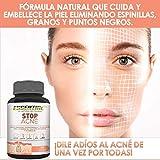 Zoom IMG-2 stop acne elimina l e