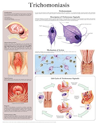 Trichomoniasis e-chart: Full illustrated