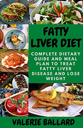 FATTY LIVER DIET: Complete Dietary Guide and Meal Plan to Treat Fatty Liver Disease and Lose Weight