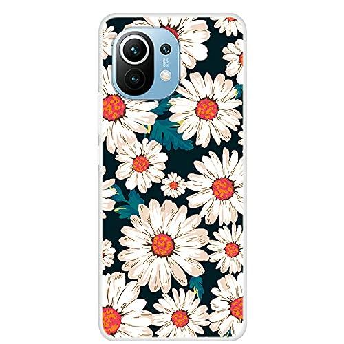 [CHSM1] Capa para celular Xiaomi Mi 11 TPU Soft Cover 3