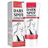 Crema blanqueadora Crema para eliminar las pecas Crema para aclarar la piel Melasma Acné Tratamiento de manchas de pigmento oscuro para hiperpigmentación facial