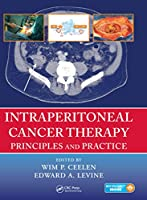 Intraperitoneal Cancer Therapy: Principles and Practice
