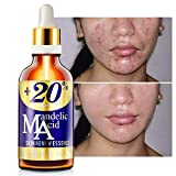 Best Aha Serums - SHILLS 20 Percent Mandelic Acid Serum for Face Review