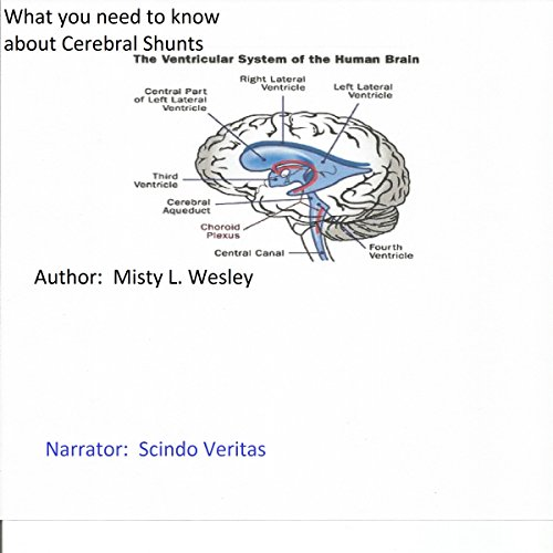 What You Should Know About Cerebral Shunts audiobook cover art