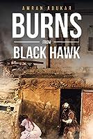 Burns from Black Hawk