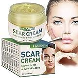 Cicatrices Crema,Crema de cicatrices,pomada de cicatrices,Adecuado para cicatrices nuevas y antiguas, cicatrices de acné, estrías y varias partes del cuerpo.
