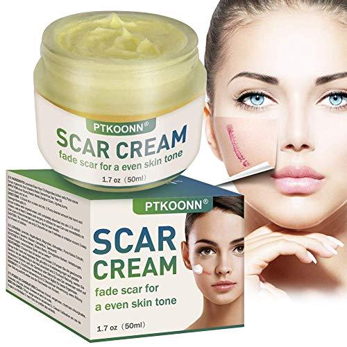 Narbencreme,Narbensalbe,Narbenentfernung,Scar Fade Cream,Behandeln Sie neue und alte Narben - Aknenarben, Dehnungsstreifen und Narben